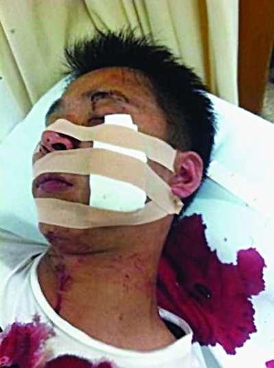 王老吉加多宝员工苏州冲突 一人脸划伤缝20多针 图